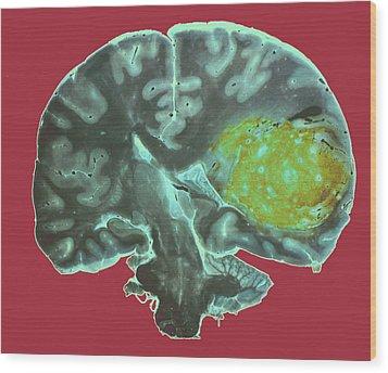 Brain Tumour Wood Print by Cnri