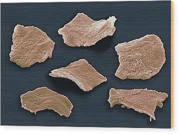 Cheek Squamous Cells, Sem Wood Print by Steve Gschmeissner