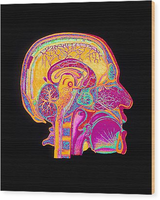 Coloured Illustration Of Sectioned Brain In Head Wood Print by Mehau Kulyk