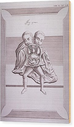 Conjoined Twins With Common Torso Wood Print by Everett