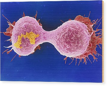 Dividing Breast Cancer Cell Wood Print by Steve Gschmeissner