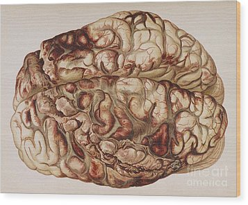 Encircling Gunshot-wound In Brain, 1898 Wood Print by Science Source