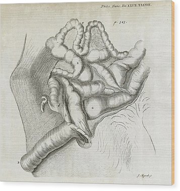Fistula And Hernia, 18th Century Wood Print by Middle Temple Library