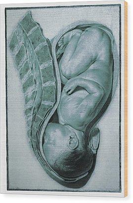 Full-term Foetus At 40 Weeks Wood Print by Mehau Kulyk