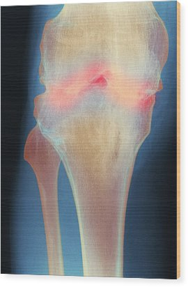 Fused Knee Joint, X-ray Wood Print by