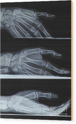 Hand X-ray Wood Print by Sami Sarkis