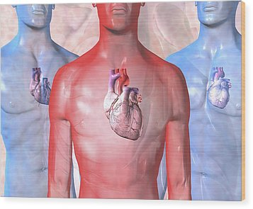 Heart Failure, Artwork Wood Print by David Mack