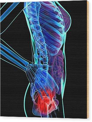 Hip Pain, Conceptual Artwork Wood Print by Roger Harris
