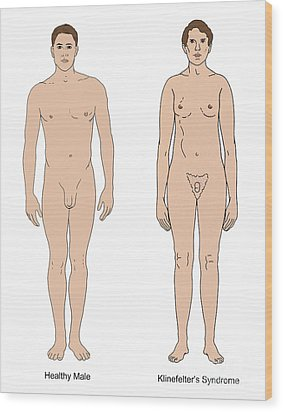 Klinefelters Syndrome & Healthy Male Wood Print by Science Source