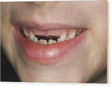 Loss Of Milk Teeth Wood Print by Lawrence Lawry