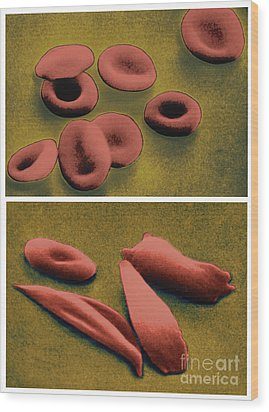 Normal And Sickle Red Blood Cells Wood Print by Omikron