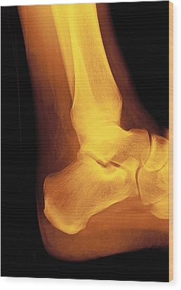 Normal Ankle Joint, X-ray Wood Print by Miriam Maslo