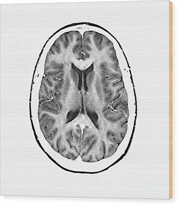 Normal Cross Sectional Mri Of The Brain Wood Print by Medical Body Scans