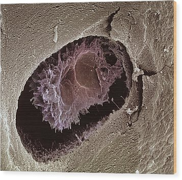 Osteocyte, Sem Wood Print by Steve Gschmeissner