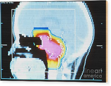 Proton Beam Therapy Wood Print by Science Source