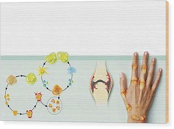 Rheumatoid Arthritis Mechanism, Artwork Wood Print by Claus Lunau