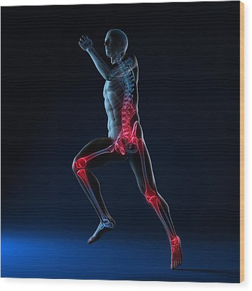 Running Injuries, Conceptual Artwork Wood Print by Sciepro