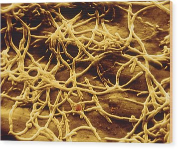 Sem Of Legionella Pneumophila Wood Print by Cnri