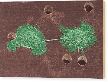 Skin Cancer Cell Dividing, Sem Wood Print by Steve Gschmeissner