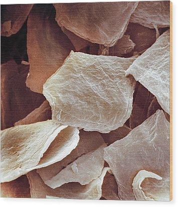 Skin Cells, Sem Wood Print by