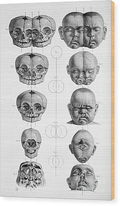 Surgical Anatomy 1856 Wood Print by Science Source