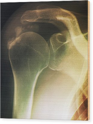 Tendinitis Of The Shoulder, X-ray Wood Print by Zephyr