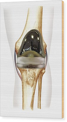 Total Knee Replacement, Artwork Wood Print by D & L Graphics