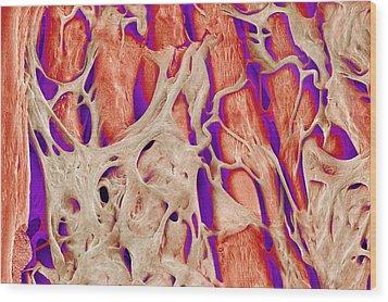 Trabeculae Carneae In The Heart, Sem Wood Print by Susumu Nishinaga