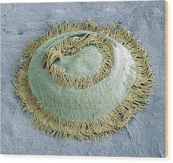 Trichodina Parasite, Sem Wood Print by Steve Gschmeissner