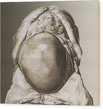 Uterus Of A Pregnant Woman Wood Print by Mehau Kulyk