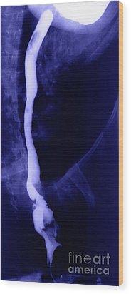 Vena Cava Wood Print by Ted Kinsman