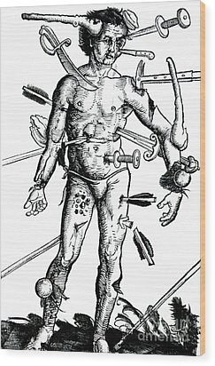 Wound Man 1517 Wood Print by Science Source