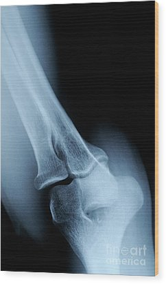 X-ray Image Of Mature's Man Elbow Wood Print by Sami Sarkis