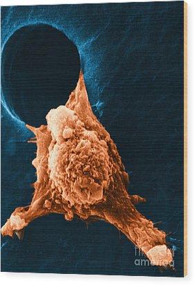 Metastasis Wood Print by Science Source