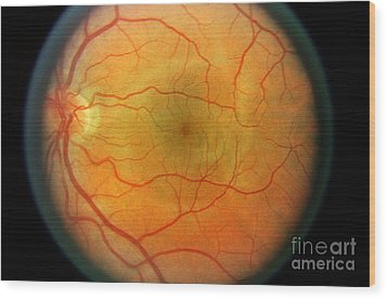 Normal Retina Wood Print by Science Source