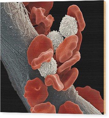 Leukaemia Blood Cells, Sem Wood Print by Steve Gschmeissner