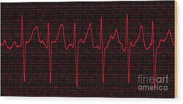 Atrial Fibrillation Wood Print by Science Source