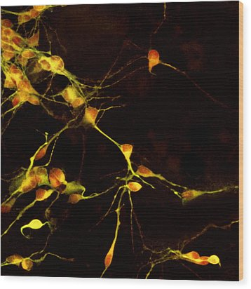 Nerve Cell Growth Wood Print by Francois Paquet-durand