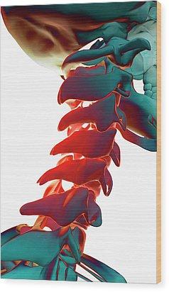 Bones Of The Neck Wood Print by MedicalRF.com
