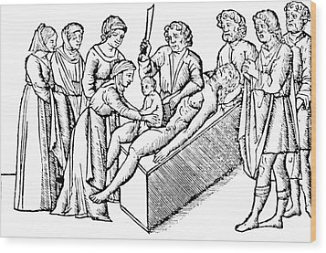 Cesarean Section 16th Century Wood Print by Science Source