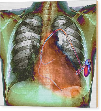 Heart Pacemaker, X-ray Wood Print by Du Cane Medical Imaging Ltd