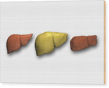 Liver: Normal, Fatty, Cirrhotic Wood Print by Pasieka