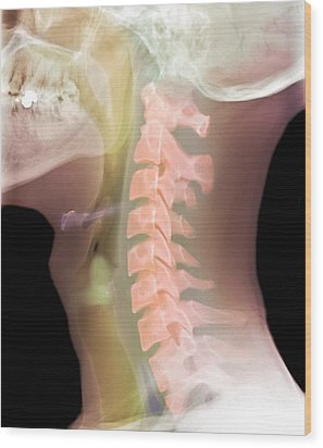 Normal Neck, X-ray Wood Print by Du Cane Medical Imaging Ltd
