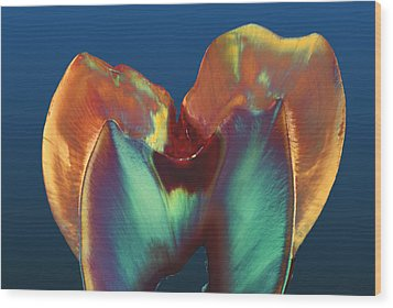 Polarised Lm Of A Molar Tooth Showing Decay Wood Print by Volker Steger