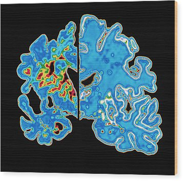 Sectioned Brains: Alzheimer's Disease Vs Normal Wood Print by Pasieka