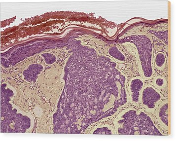 Skin Cancer, Light Micrograph Wood Print by Steve Gschmeissner