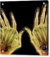 Arthritic Hands, X-ray Acrylic Print