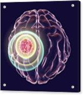Brain Cancer Treatment Acrylic Print