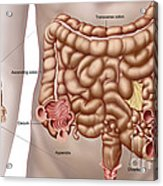 Diverticulitis In The Descending Colon Acrylic Print by Stocktrek Images