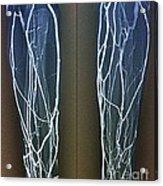 Forearm Veins, X-ray Acrylic Print
